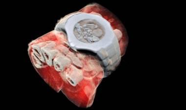 Prima radiografia in 3D a colori di un essere umano